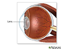 Cataract surgery - series