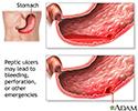 Ulcer emergencies