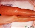 Deep venous thrombosis, ileofemoral