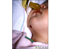 Hemangioma on the chin