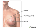 Breast lump removal - Series