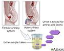 Aminoaciduria urine test
