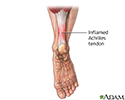 Inflamed Achilles tendon