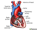 Normal heart anatomy (cut section)