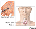 Thyroid function test