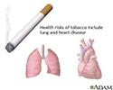 Tobacco health risks