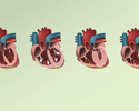 Cardiomyopathy overview